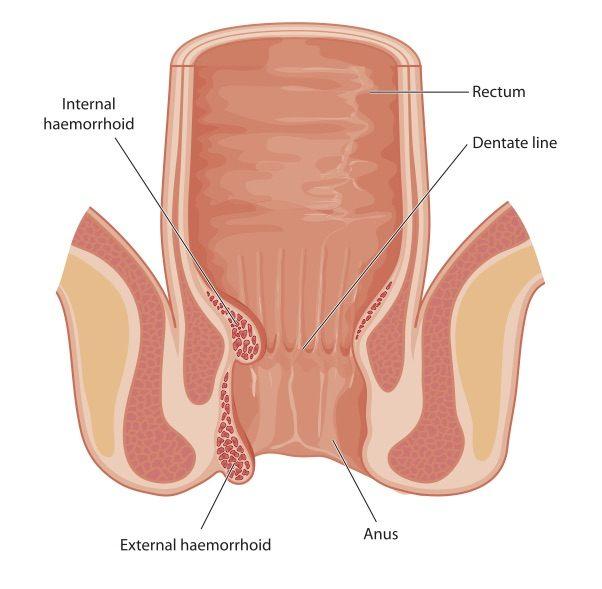Haemorrhoid